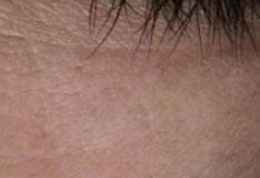 Dark eyes after 10 days