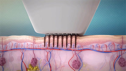 Epidermal Controlled Wounds