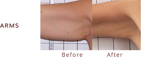Arms before & after Venus Freeze
