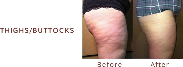 Thighs/buttocks before & after Venus Freeze