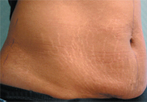 Before more toned body lightened stretch marks.