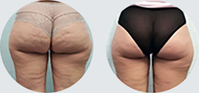 Cellulite and localised fat