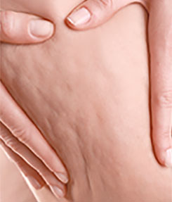 Smoothing Out Cellulite