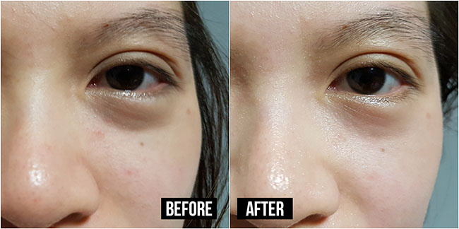 Before/After Youth Eye Filler Mask