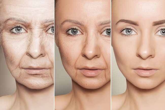Extrinsic ageing