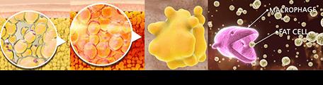Steps of apoptosis